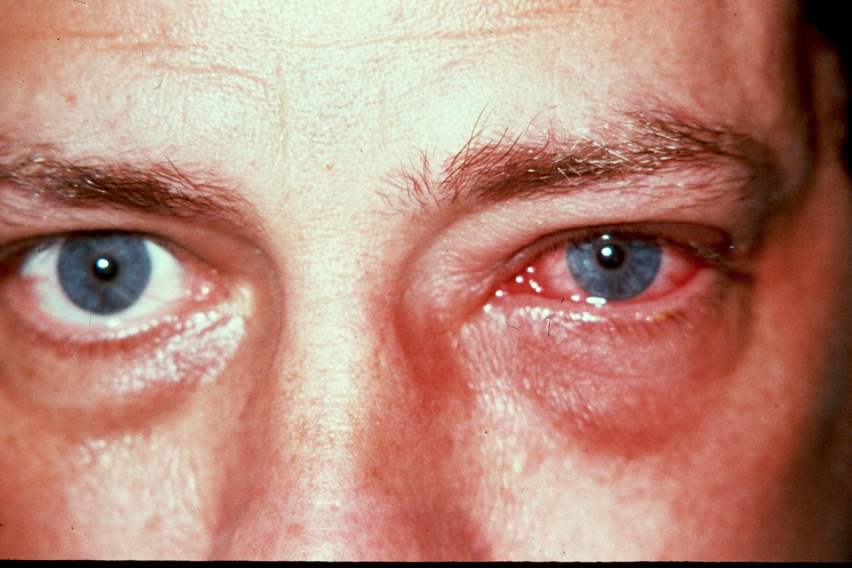 Episclerita (ochi roşu)